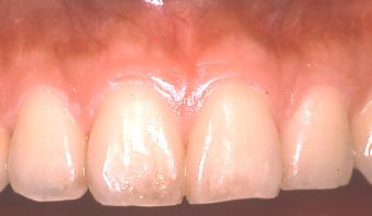 健康な歯肉画像