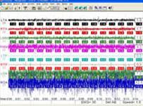 顎運動解析装置画像2