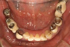 下顎 治療前画像