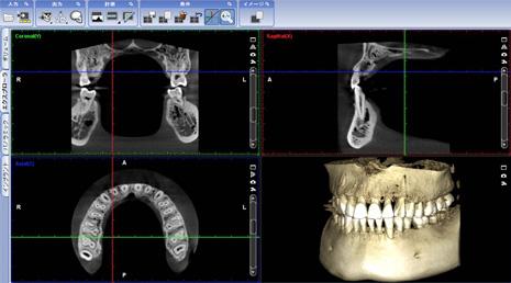 パノラマ/セファロX線撮影装置「PLANMECA ProMax」画像2